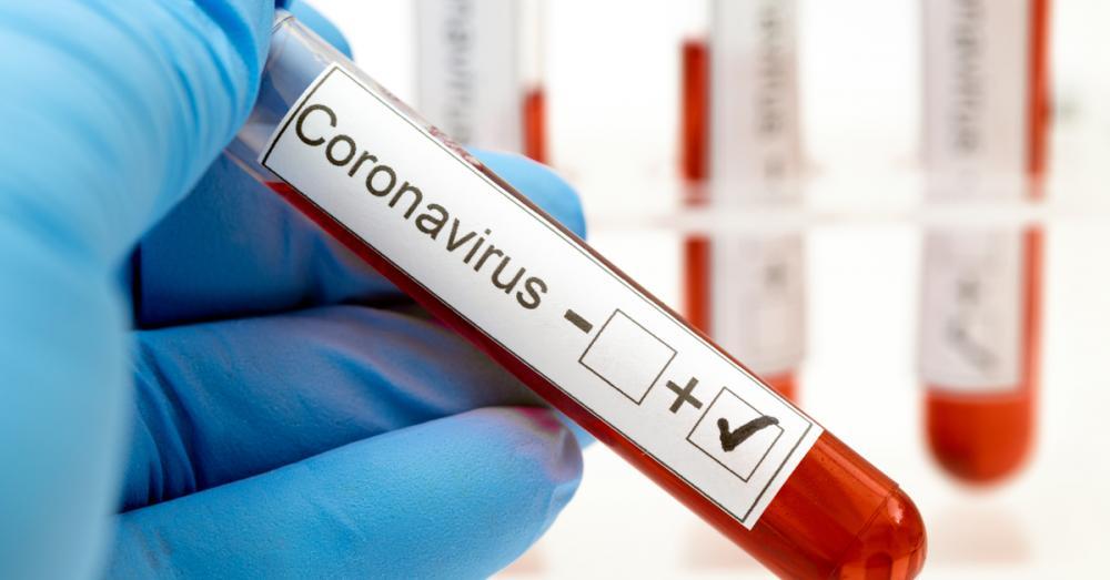 O mês de julho foi considerado o pior mês levando em conta o número de infectados e óbitos em todo o país (Foto: Divulgação)